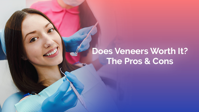 does-veneers-worth-it-the-pros-&-cons